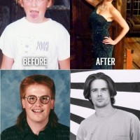 Before and After Puberty Wins!