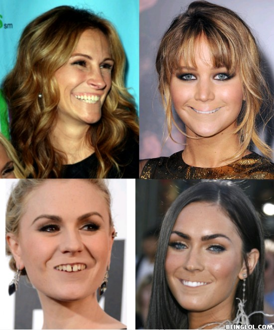 Celebrities Without Lips