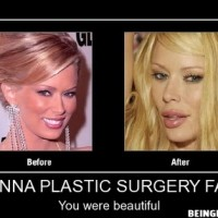 Jenna Plastic Surgery Fail !