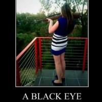 A Black Eye